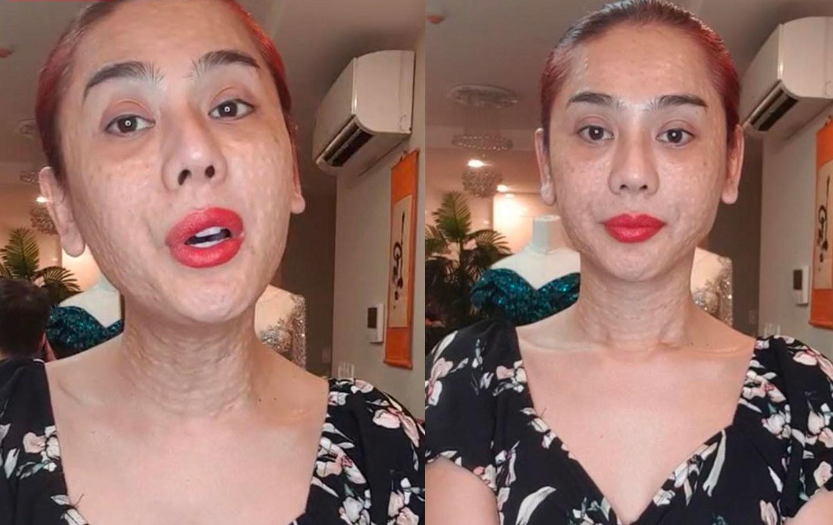 Không hiểu lý do vì sao mà gương mặt của Lâm Khánh chi chít đầy nốt sần