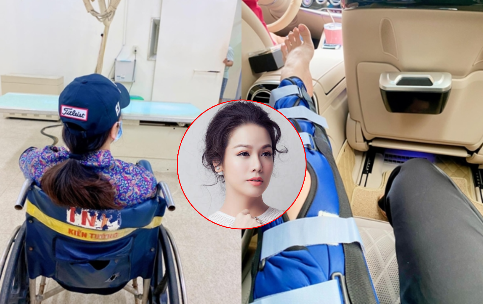 Nhật Kim Anh bị ngã rách dây chằng đến mức phải ngồi xe lăn, ngừng công việc trong 2 tuần