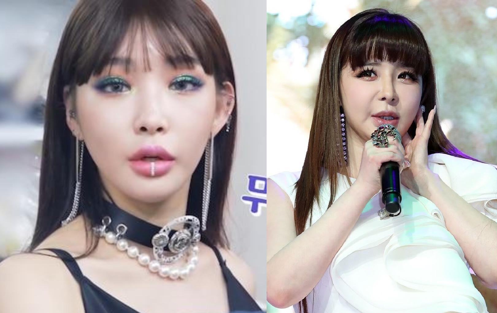 Chungha bị chỉ trích thậm tệ vì lộ mặt sưng phồng, cứng đơ, chẳng khác gì Park Bom