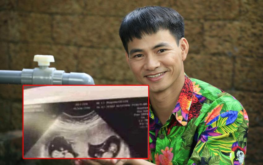 Vợ Xuân Bắc đăng hình siêu âm mang thai, Bi Béo sắp có em?