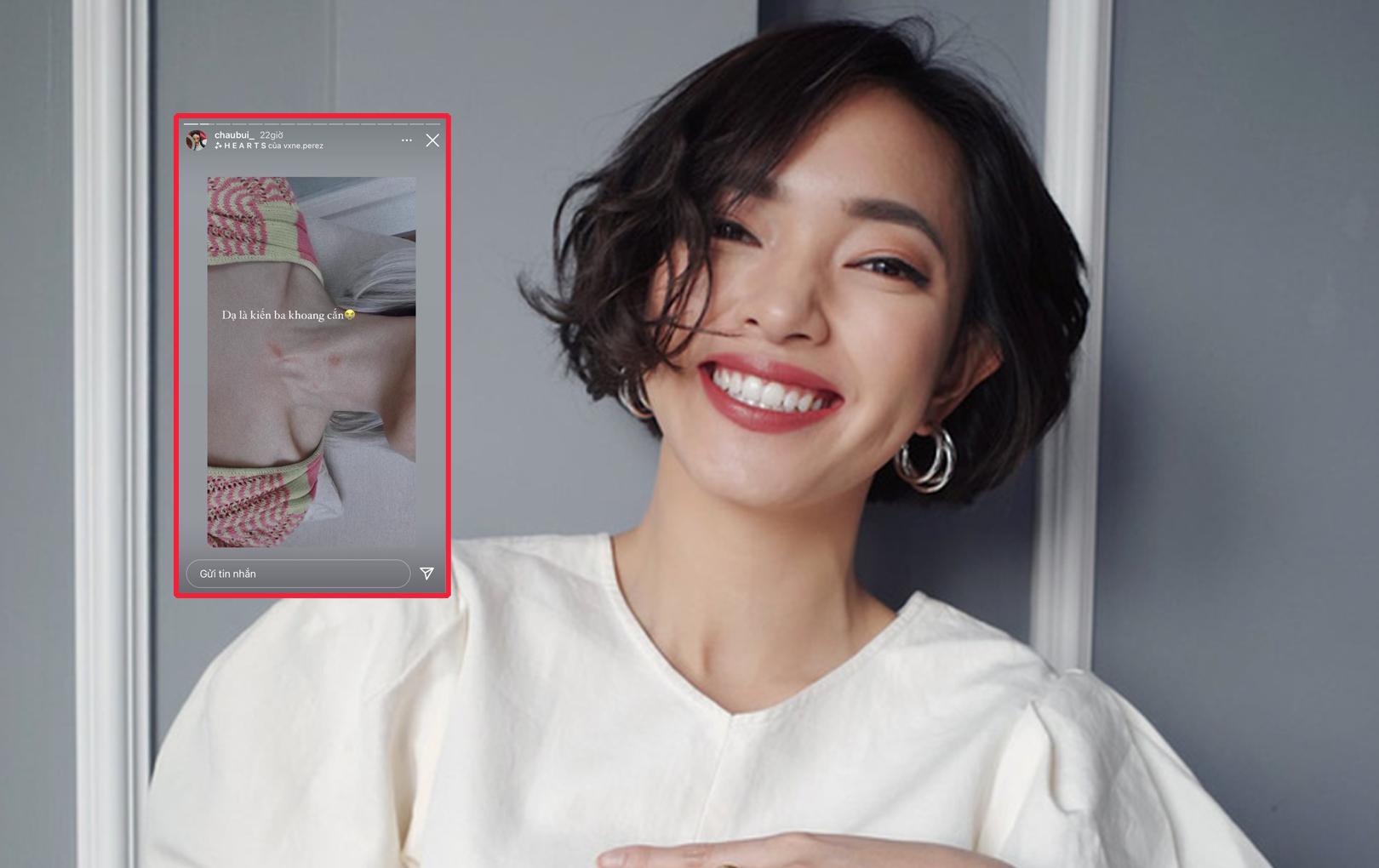 """Châu Bùi phải vội thanh minh khi bị netizen """"nghi vấn"""" vì cổ xuất hiện vết cắn lạ"""