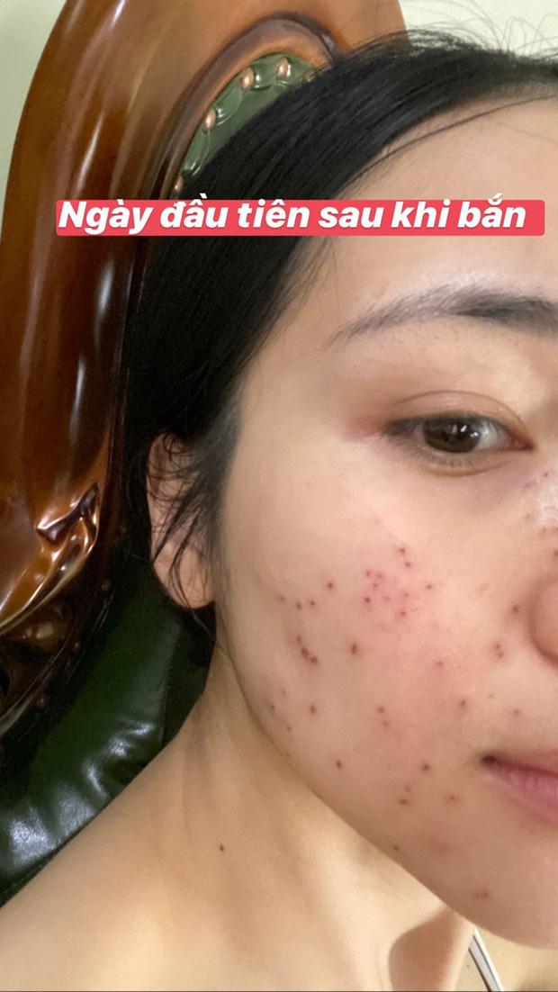 """Ngày thường makeup kĩ càng, chỉnh ảnh lung linh nên ít ai ngờ Hòa Minzy cũng có """"cả rổ"""" mụn thịt"""