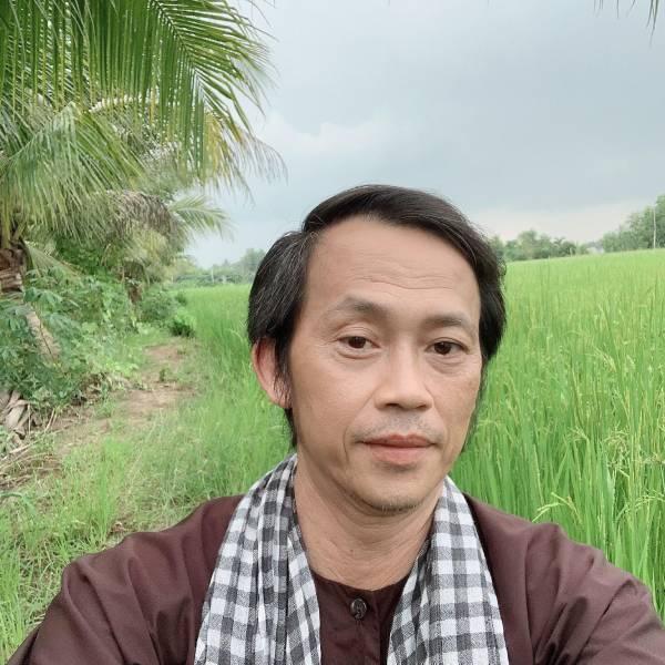 Nghệ sĩ Hoài Linh bật mí ý định đi phẫu thuật thẩm mỹ căng da mặt