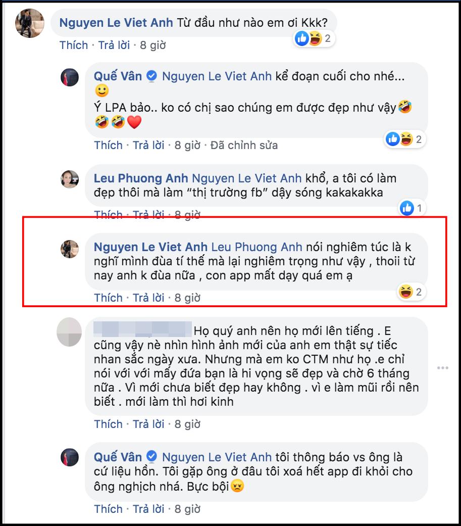 Cuối cùng Việt Anh cũng chịu lên tiếng giải thích lý do thẩm mỹ khiến gương mặt khác hẳn, phủ nhận chuyện hạ gò má, mở hốc mắt