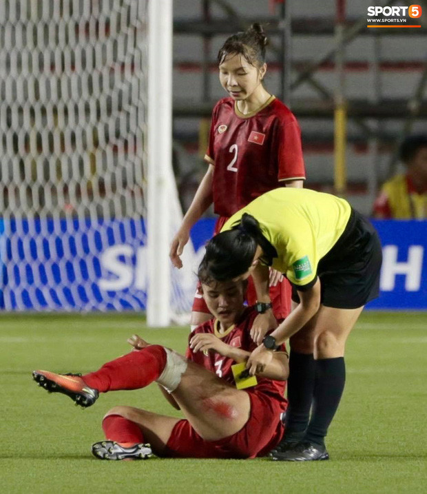 Cận cảnh vết thương đau đớn khiến nữ cầu thủ Việt Nam không ngủ nổi sau trận thắng Thái Lan ở SEA Games 30