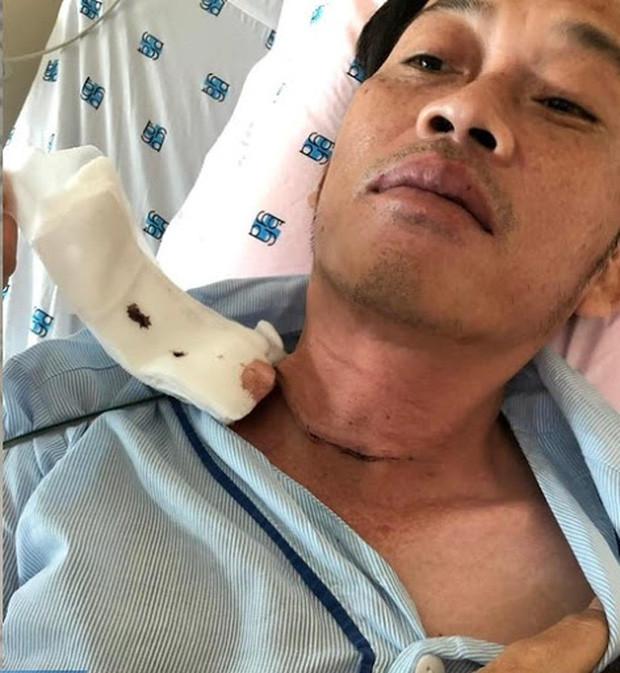 Đàn em thân thiết hé lộ về tình trạng bệnh tình của NS Hoài Linh: Ngày anh điều trị, không nói bằng lời nếu nói to quá sẽ đứt dây thanh quản